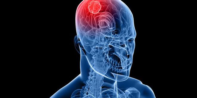 Gefahr Mobilfunk und Hirntumor bewiesen (©123rf.com)